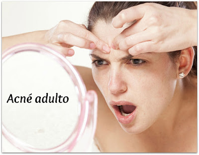 acne-adulto
