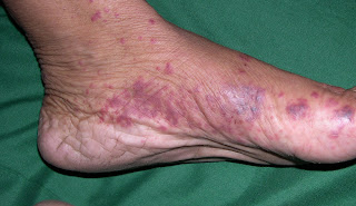 Does Kawasaki Disease Go Away
