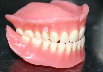 Problèmes de dentier