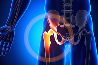 Diferença entre Osteoartrose e osteonecrose de quadril