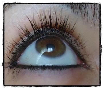 Las revocaciones sobre el pulido láser bajo los ojos