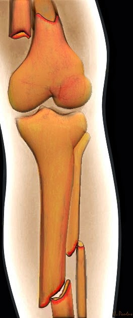 Leg Fracture (Femur, Tibia, Fibula) on 3-D Color X-Ray Image