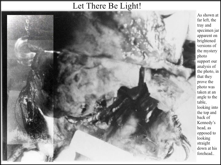 JFK-Autopsy-Photo-With-Pat-Speer-Caption