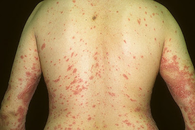 It Can Help Facilitate Psoriasis Treatments