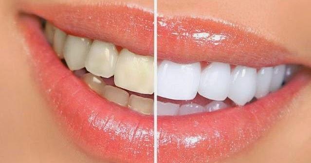 无需洗牙,教你5分钟消除牙垢!太实用了,转载分享给朋友!