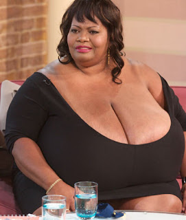 Annie Hawkins-Turner World's Biggest Breast