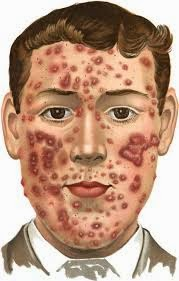 Acne Treatment Worcester