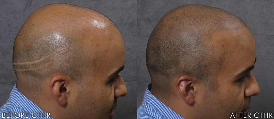 Hair Transplant Surgery: Cost, Results, and Celebrity ...
