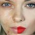 LUAR BIASA, Cara Ini Bisa Atasi Semua Masalah Kecantikan Anda