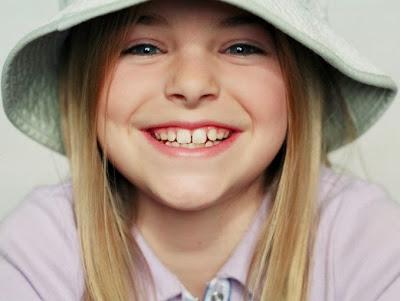 sonrisa-hermosa