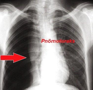pnömotoraks, pneumothorax