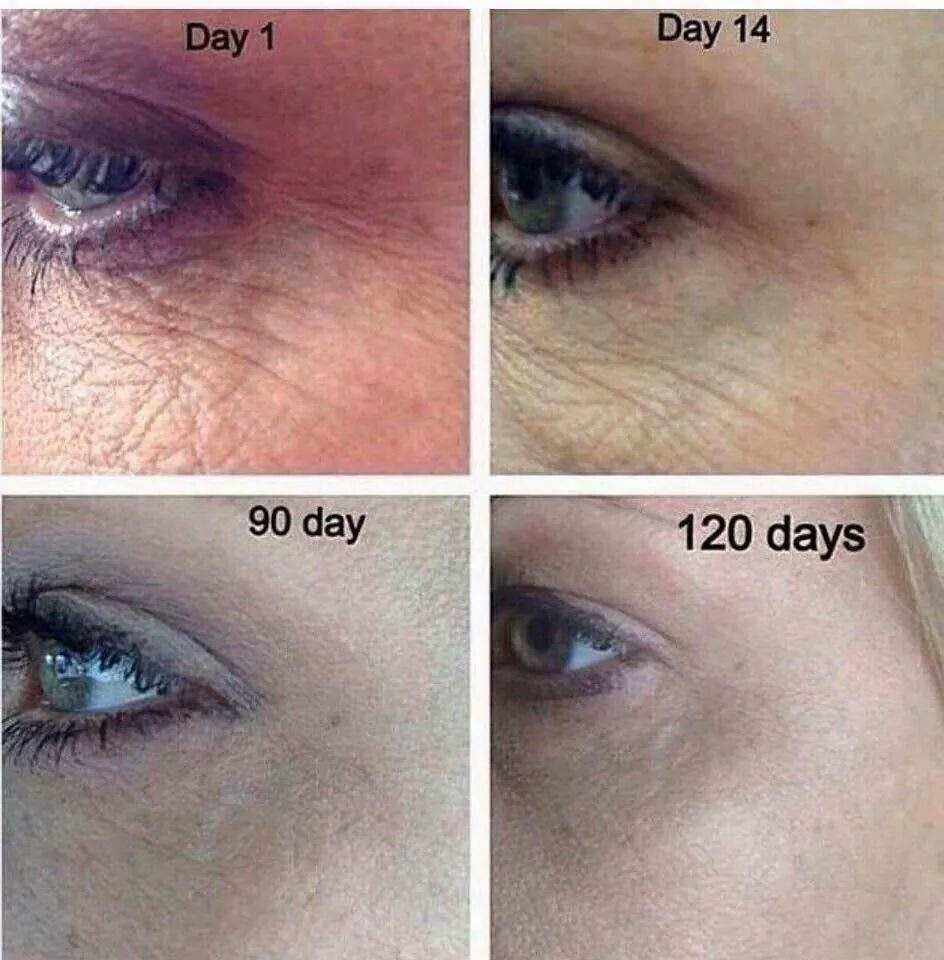 Nerium before and after 1