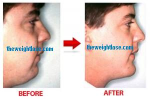 face fat tips,lose double chin,lose fat from face