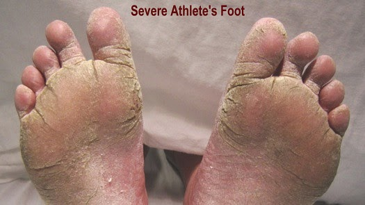 Severe Athlete's Foot