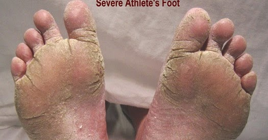 Severe athletes foot