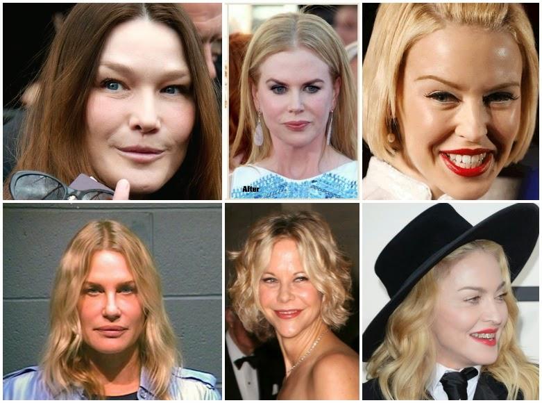 adicción al botox en famosas