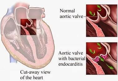 Endocarditis infecciosa actualizado