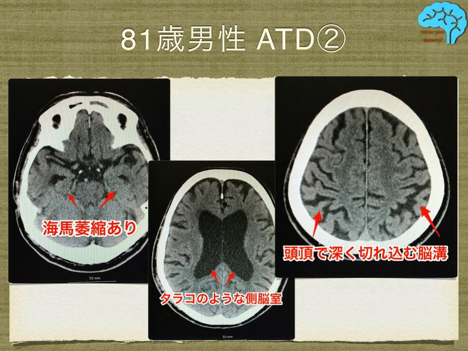 典型的なアルツハイマー型認知症のCT画像。