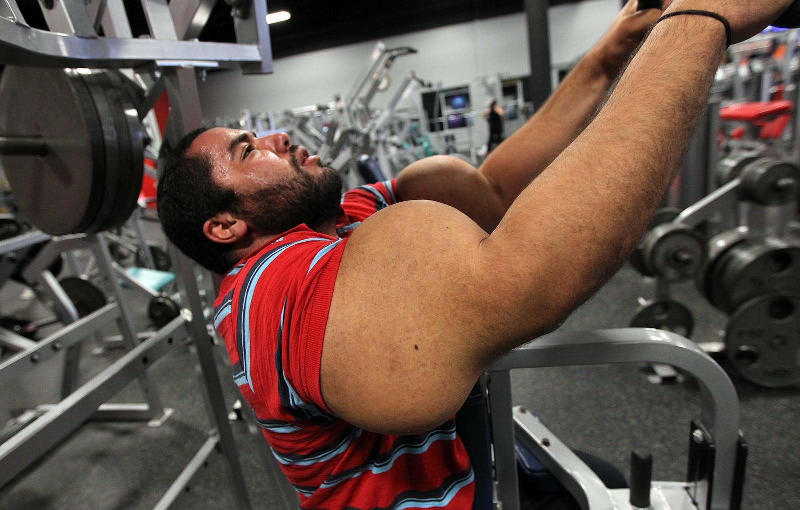 Synthol freak moustafa ismail 31 inch biggest biceps world record