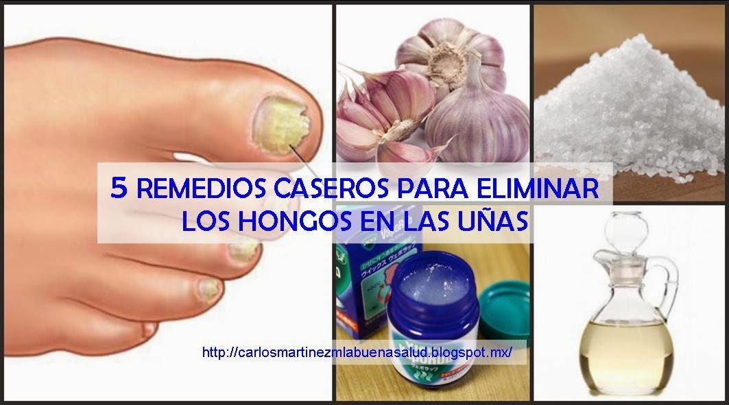 Carlos Martinez M_La Buena Salud al alcance de Todos: 5 REMEDIOS ...