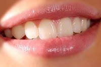 cara memutihkan gigi - exnim.com
