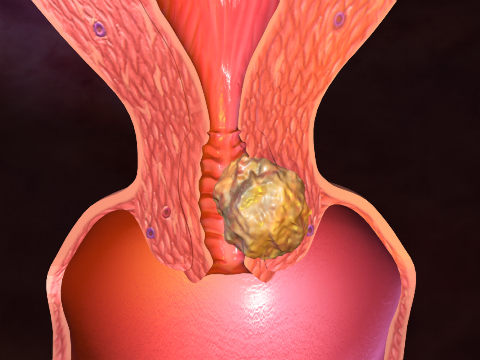 рак цервикса