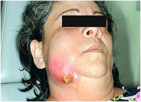 Spontaneous extraoral (undesirable) drainage of an abscess, after the ...