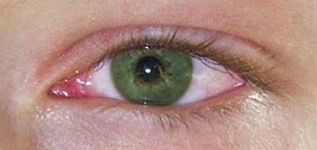 Mengobati Sakit Mata pada Anak Balita dan Pencegahannya