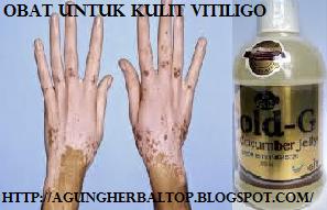 Pengobatan Kulit Tradisional Atasi Vitiligo