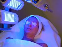 Menghilangkan Jerawat dengan Blue Light Therapy