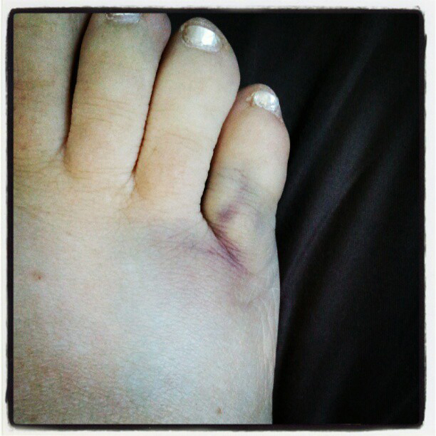 how to tell if toe is broken or stubbed