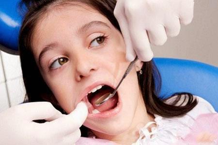Nhổ răng khôn 1