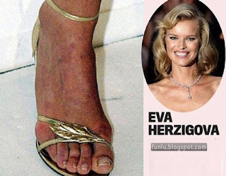 +Ugly feet celebrities+(13) Ugly Feet Of The Celebrities