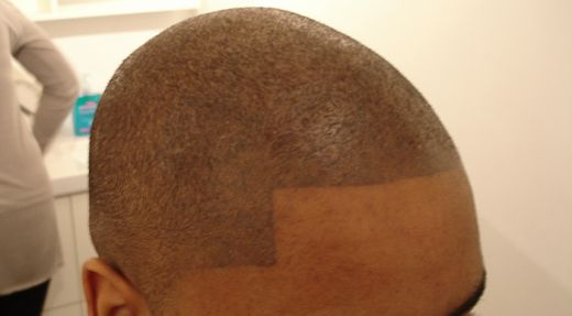 tattoo do bald hair to hide the baldness