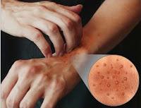 وصفة الدكتور جمال الصقلي لعلاج لكزيما