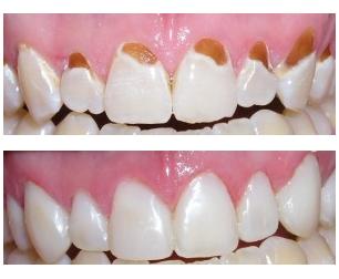 curacion arreglo resina caries dientes