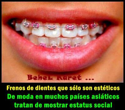 dientes-dentadura-estetica