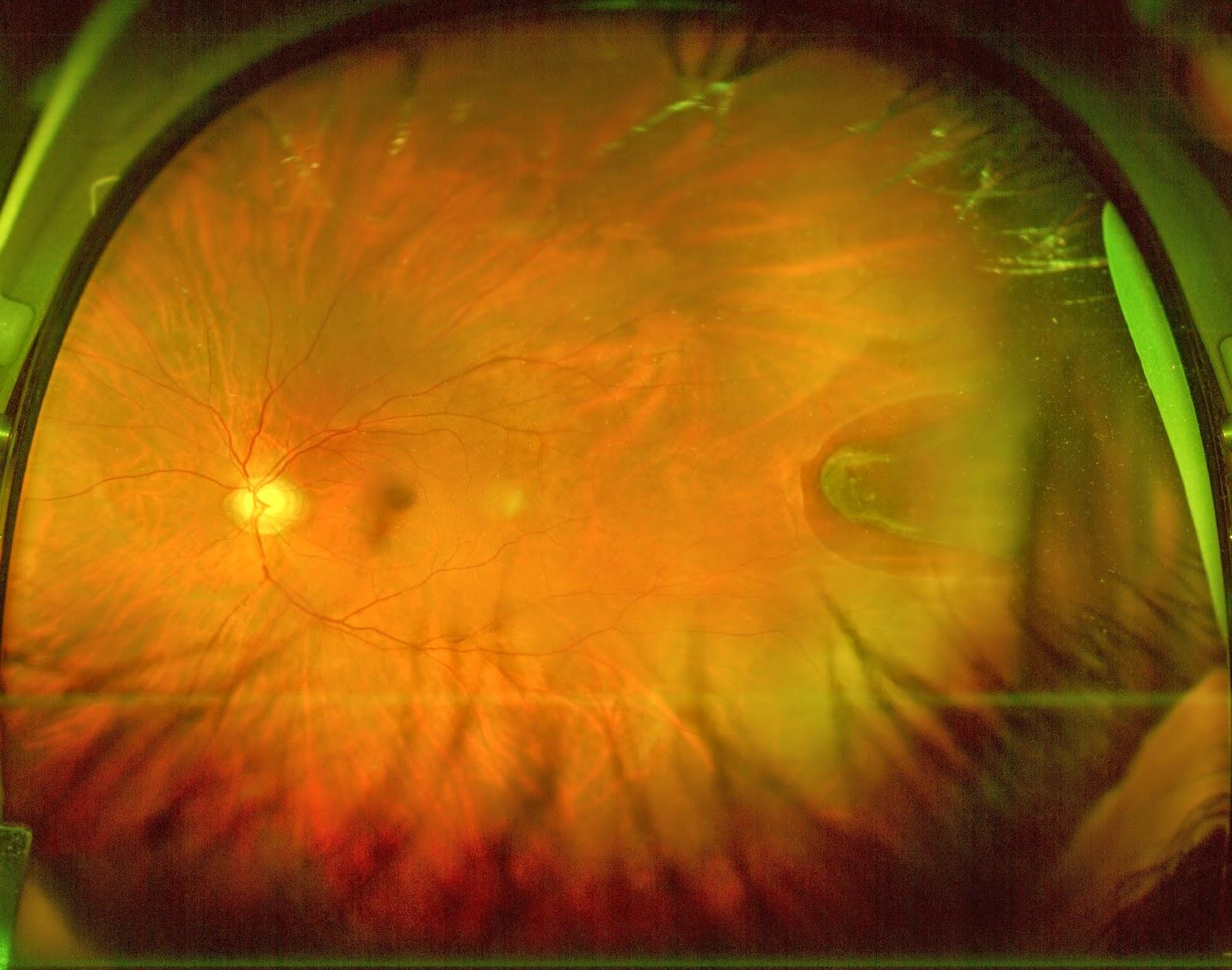 Retinal 'U' tear