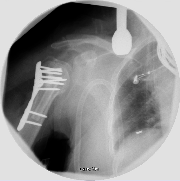 Humeral head split in the elderly - Is shoulder prosthetic replacement -2.bp.blogspot.com