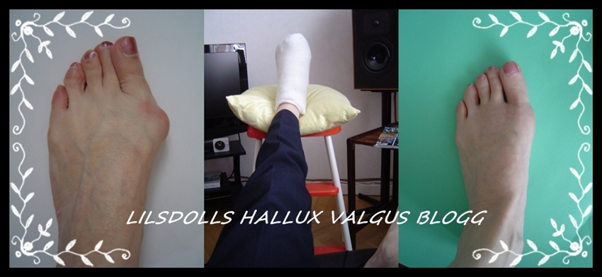 Lilsdolls Hallux Valgus Operation