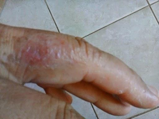 Se agrieta la piel en las manos la psoriasis