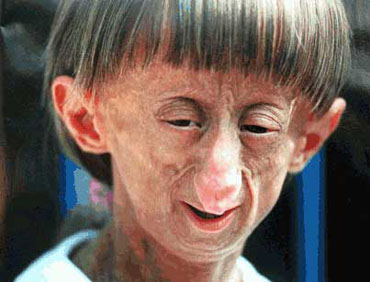 Does anyone know a good question or hypothesis for a scientific research paper on progeria?