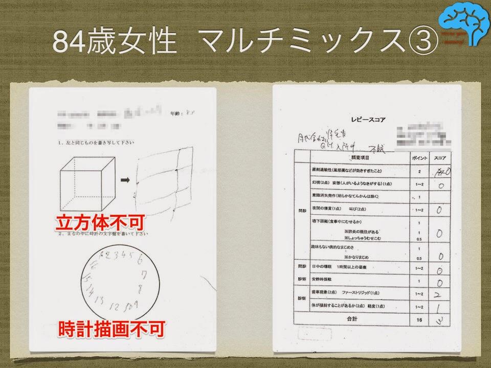 透視立方体模写と時計描画テストは不可。レビースコア3点。