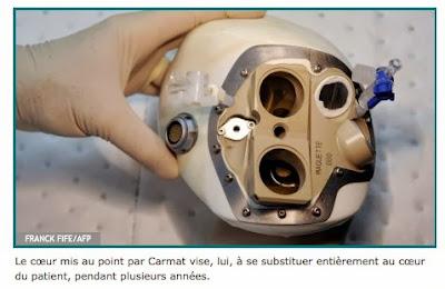 http://sante.lefigaro.fr/actualite/2013/12/20/21746-francais-implantent-premier-coeur-artificiel