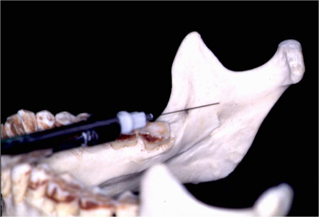 figure 13 distribution of anesthesia inferior alveolar nerve block jpg