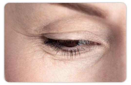 El hinchazón del ojo de las lentes