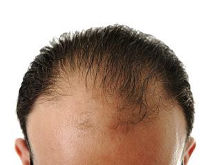 Entwickeln Sie eine Strategie für den Umgang mit vorzeitigem Haarausfall