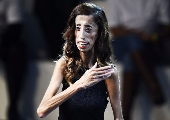 ugliest woman in the world ,Lizzie Velasquez.