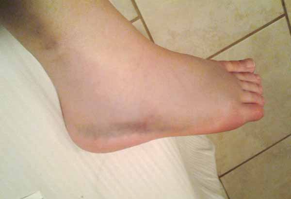 lateral malleolus swelling - photo #39