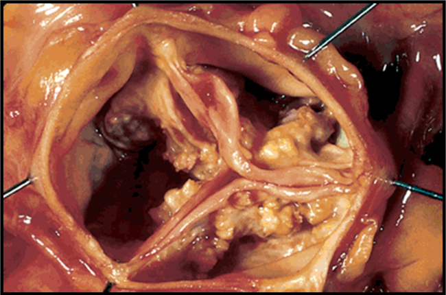 aortic valve stenosis Tavr aortic valve replacement for aortic stenosis patients overview  transcript chapters doctors and specialist from the u-m frankel.